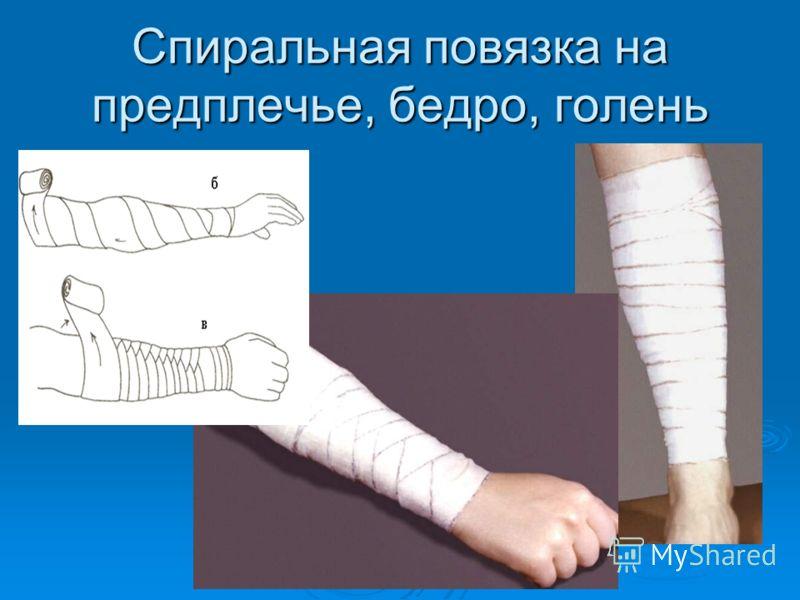 Спиральная повязка на предплечье, бедро, голень