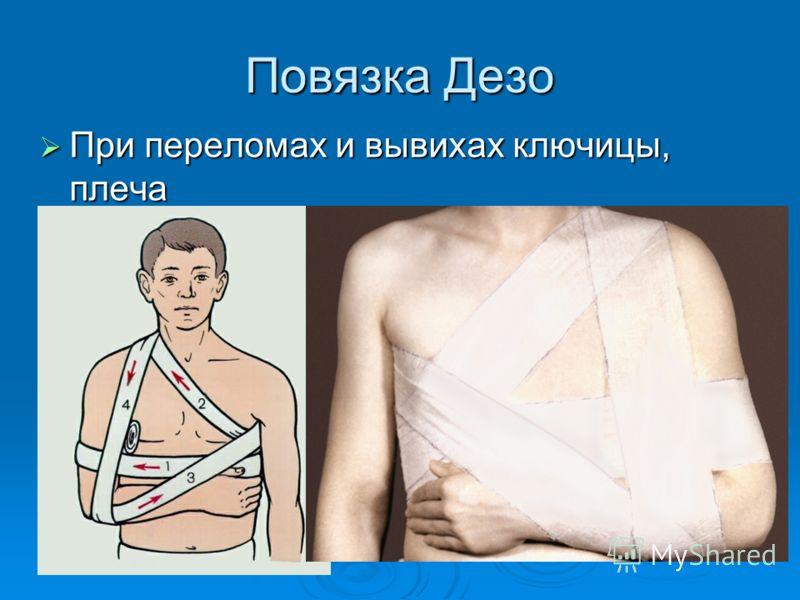 Повязка Дезо При переломах и вывихах ключицы, плеча При переломах и вывихах ключицы, плеча