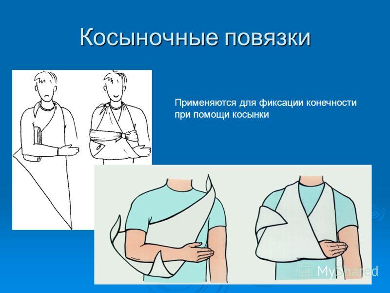 Косыночные повязки Применяются для фиксации конечности при помощи косынки