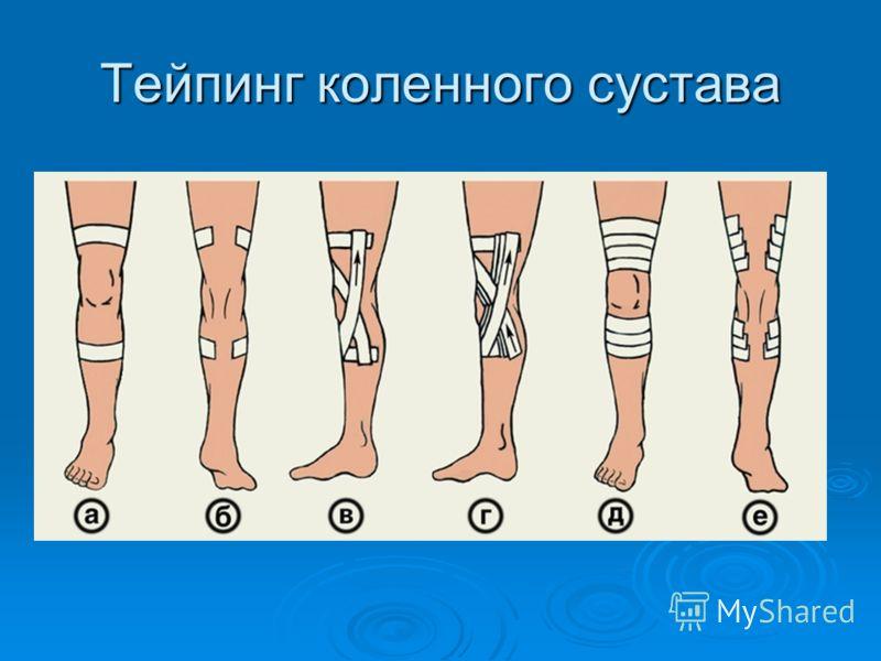 Тейпинг коленного сустава