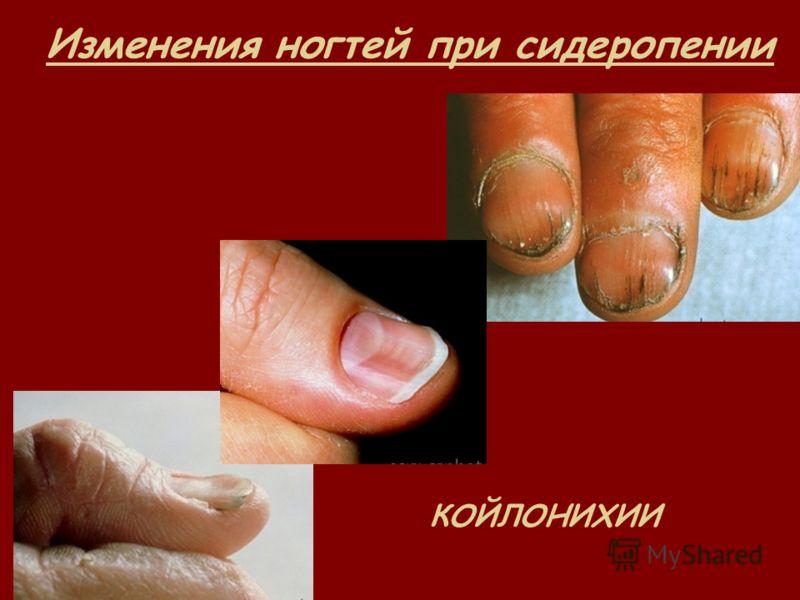 Изменения ногтей при сидеропении КОЙЛОНИХИИ