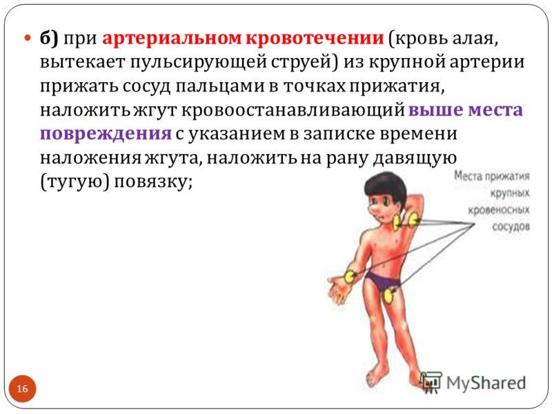 б ) при артериальном кровотечении ( кровь алая, вытекает пульсирующей струей ) из крупной артерии прижать сосуд пальцами в точках прижатия, наложить жгут кровоостанавливающий выше места повреждения с указанием в записке времени наложения жгута, налож