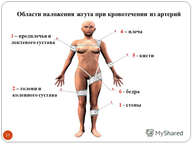 Области наложения жгута при кровотечении из артерий 1 - стопы 2 – голени и коленного сустава 5 - кисти 3 – предплечья и локтевого сустава 4 – плеча 6 - бедра 17