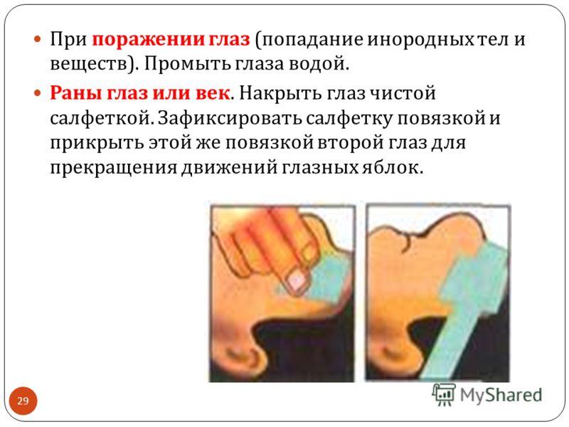 29 При поражении глаз ( попадание инородных тел и веществ ). Промыть глаза водой. Раны глаз или век. Накрыть глаз чистой салфеткой. Зафиксировать салфетку повязкой и прикрыть этой же повязкой второй глаз для прекращения движений глазных яблок.