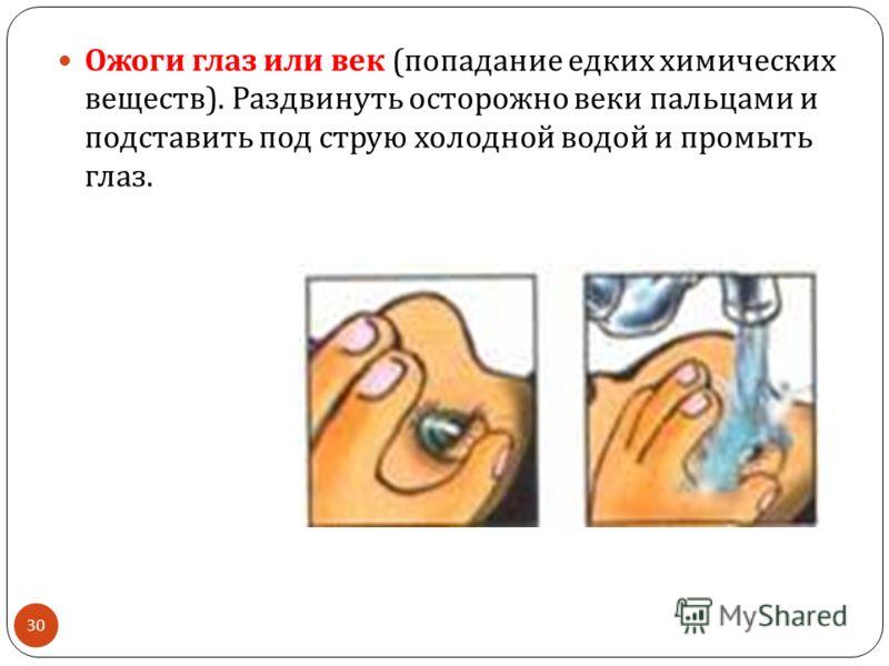 30 Ожоги глаз или век ( попадание едких химических веществ ). Раздвинуть осторожно веки пальцами и подставить под струю холодной водой и промыть глаз.