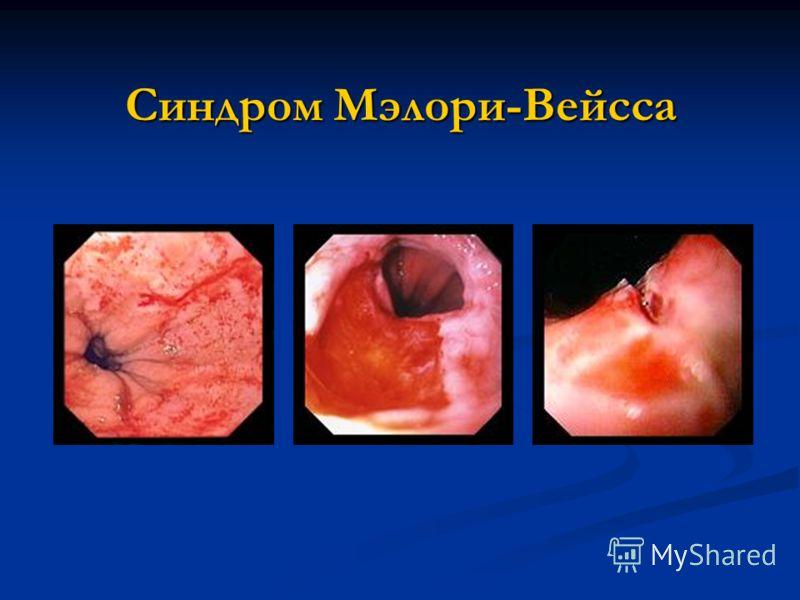 Синдром Мэлори-Вейсса