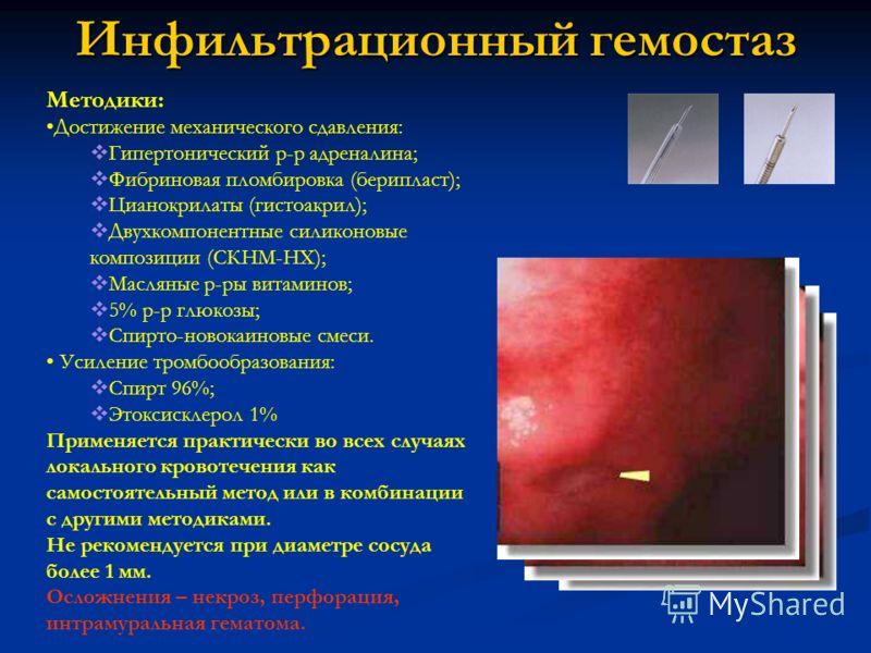 Инфильтрационный гемостаз Методики: Достижение механического сдавления: Гипертонический р-р адреналина; Фибриновая пломбировка (берипласт); Цианокрилаты (гистоакрил); Двухкомпонентные силиконовые композиции (СКНМ-НХ); Масляные р-ры витаминов; 5% р-р