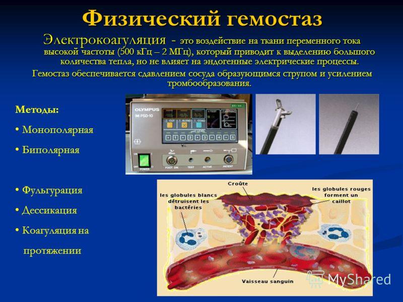 Физический гемостаз Электрокоагуляция - это воздействие на ткани переменного тока высокой частоты (500 кГц – 2 МГц), который приводит к выделению большого количества тепла, но не влияет на эндогенные электрические процессы. Гемостаз обеспечивается сд