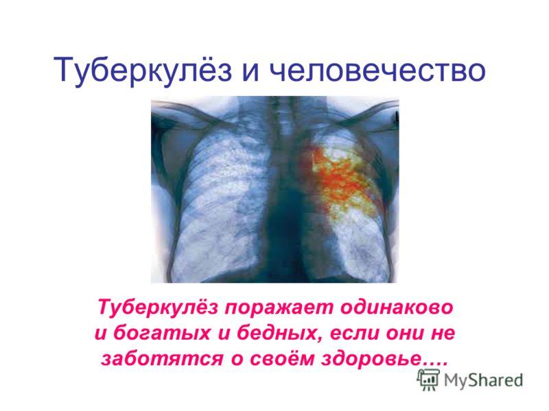 Туберкулёз и человечество Туберкулёз поражает одинаково и богатых и бедных, если они не заботятся о своём здоровье….