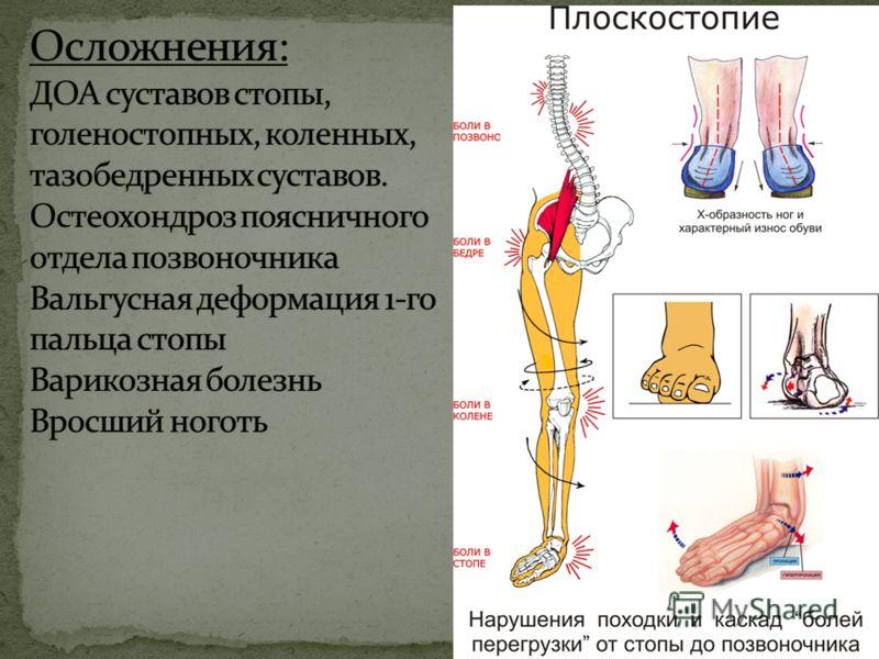 Плоскостопие - самый распространенный вид деформации стопы. Признаки: 1. уплощение сводов стопы 2. пронирование заднего отдела стопы 3. Отведение и распластывание переднего отдела стопы. 4. Отклонение 1-го пальца стопы кнаружи