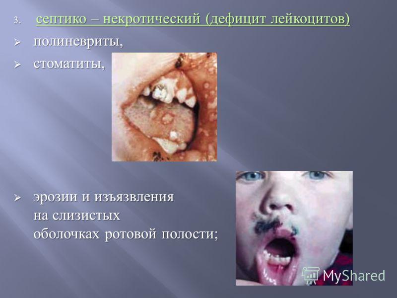 3. септико – некротический ( дефицит лейкоцитов ) полиневриты, полиневриты, стоматиты, стоматиты, эрозии и изъязвления на слизистых оболочках ротовой полости ; эрозии и изъязвления на слизистых оболочках ротовой полости ;