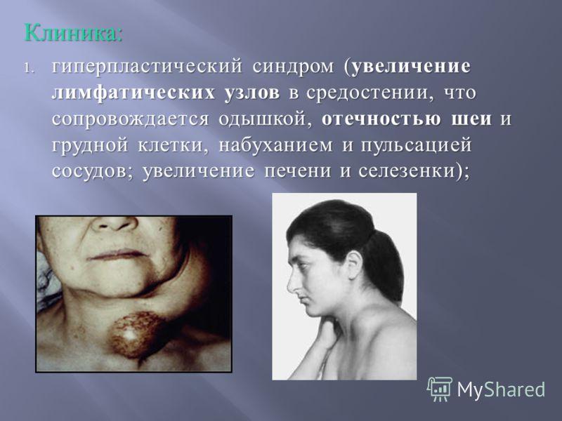 Клиника: 1. гиперпластический синдром ( увеличение лимфатических узлов в средостении, что сопровождается одышкой, отечностью шеи и грудной клетки, набуханием и пульсацией сосудов ; увеличение печени и селезенки );