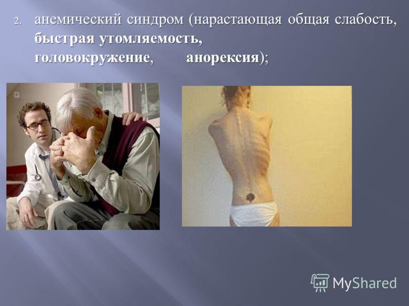 2. анемический синдром ( нарастающая общая слабость, быстрая утомляемость, головокружение, анорексия );