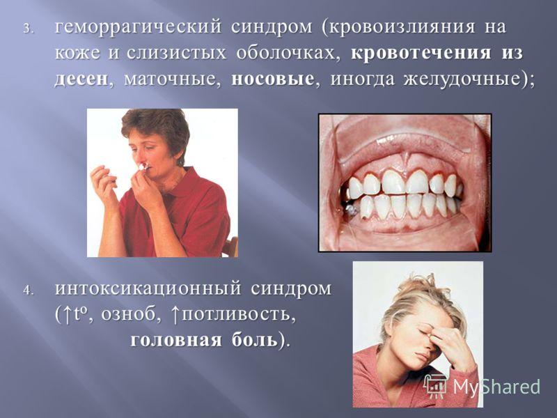 3. геморрагический синдром ( кровоизлияния на коже и слизистых оболочках, кровотечения из десен, маточные, носовые, иногда желудочные ); 4. интоксикационный синдром ( t o, озноб, потливость, головная боль).