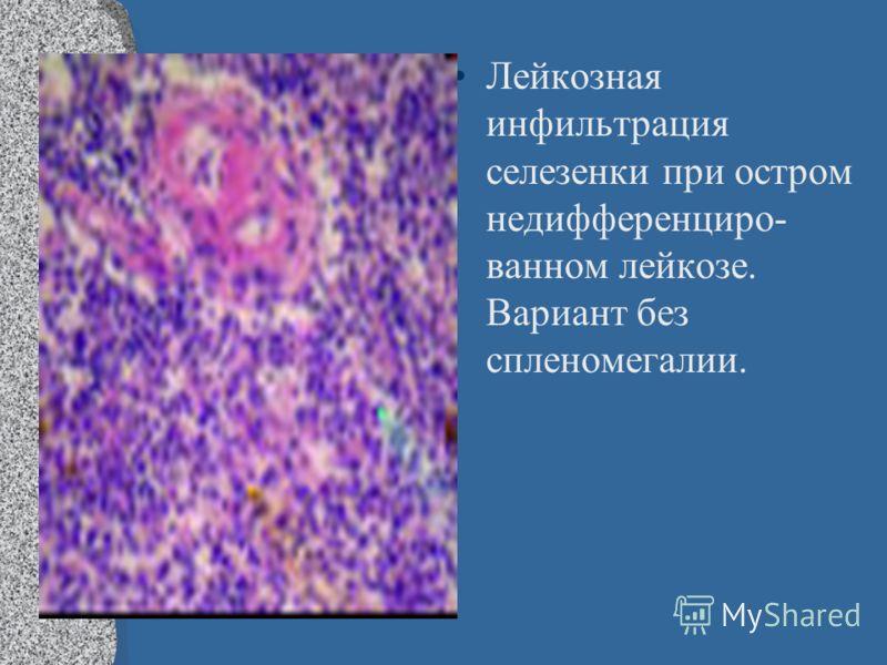 Лейкозная инфильтрация селезенки при остром недифференциро- ванном лейкозе. Вариант без спленомегалии.