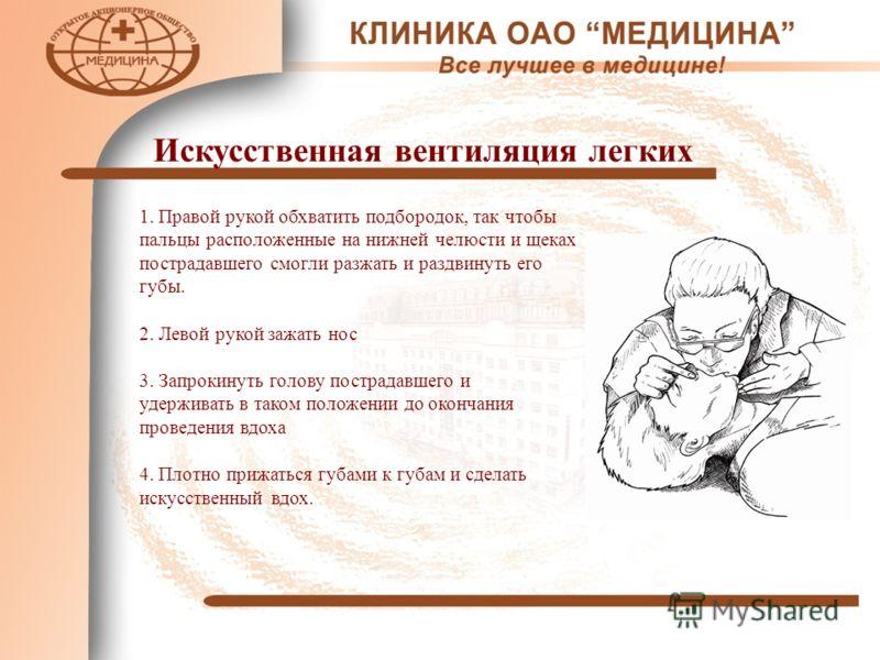 Искусственная вентиляция легких 1. Правой рукой обхватить подбородок, так чтобы пальцы расположенные на нижней челюсти и щеках пострадавшего смогли разжать и раздвинуть его губы. 2. Левой рукой зажать нос 3. Запрокинуть голову пострадавшего и удержив