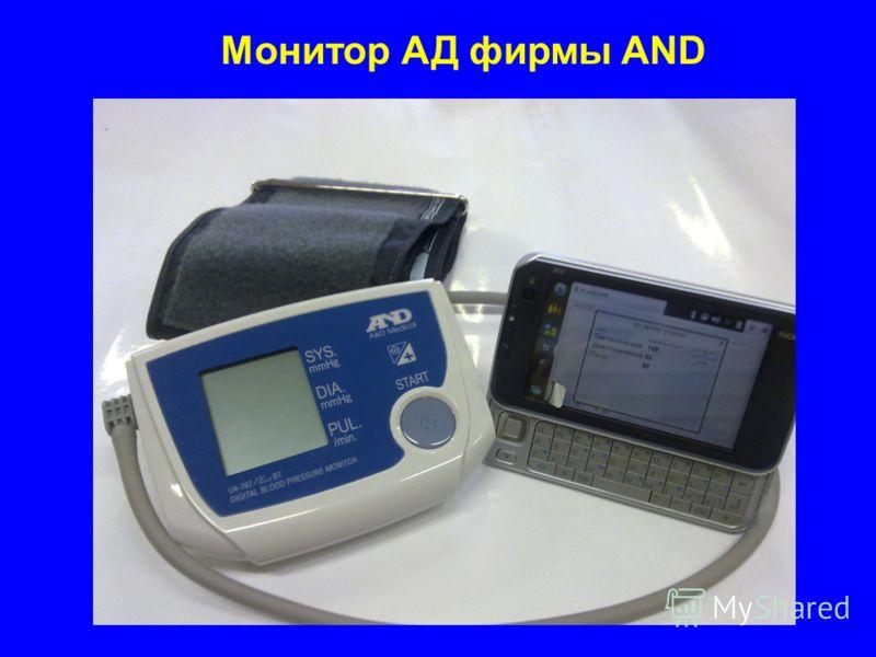 Монитор АД фирмы AND