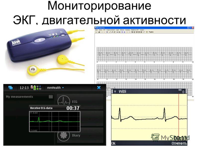 Мониторирование ЭКГ, двигательной активности