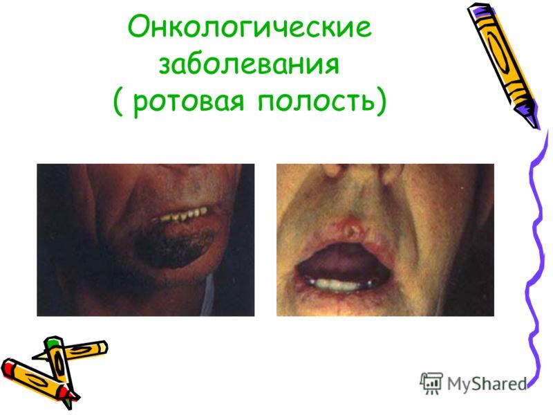 Онкологические заболевания ( ротовая полость)