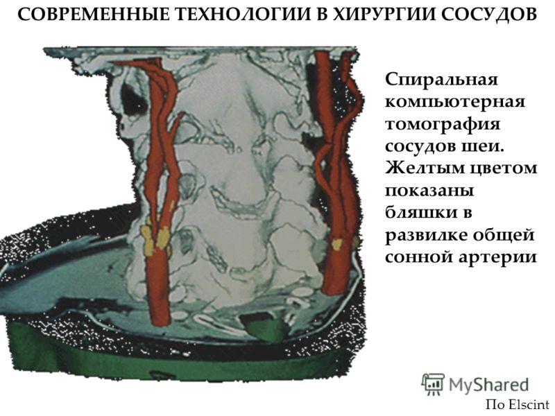 СОВРЕМЕННЫЕ ТЕХНОЛОГИИ В ХИРУРГИИ СОСУДОВ Спиральная компьютерная томография сосудов шеи. Желтым цветом показаны бляшки в развилке общей сонной артерии По Elscint
