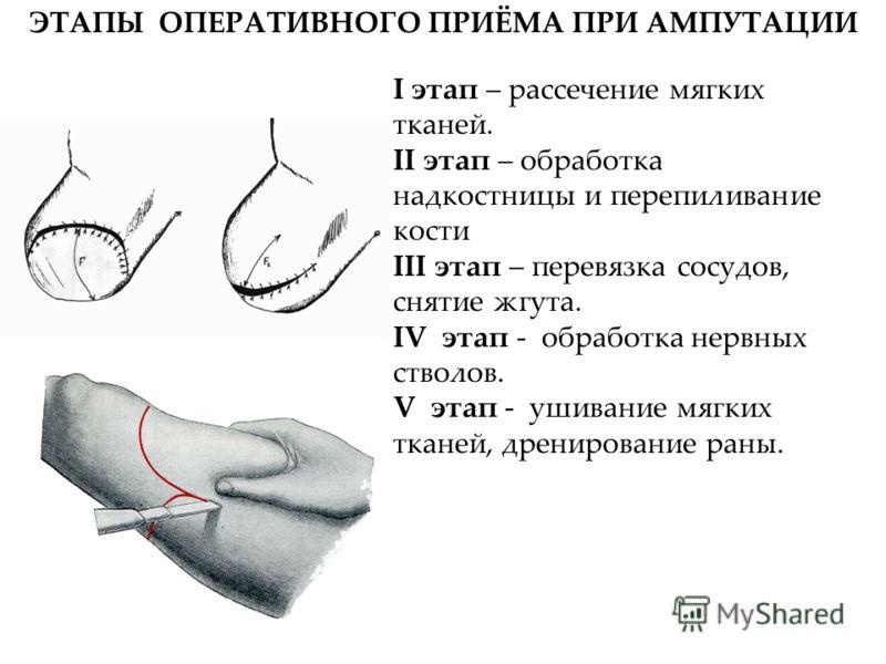 ЭТАПЫ ОПЕРАТИВНОГО ПРИЁМА ПРИ АМПУТАЦИИ I этап – рассечение мягких тканей. II этап – обработка надкостницы и перепиливание кости III этап – перевязка сосудов, снятие жгута. IV этап - обработка нервных стволов. V этап - ушивание мягких тканей, дрениро