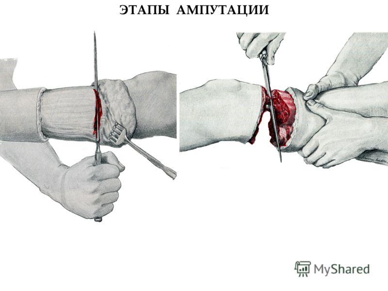 ЭТАПЫ АМПУТАЦИИ