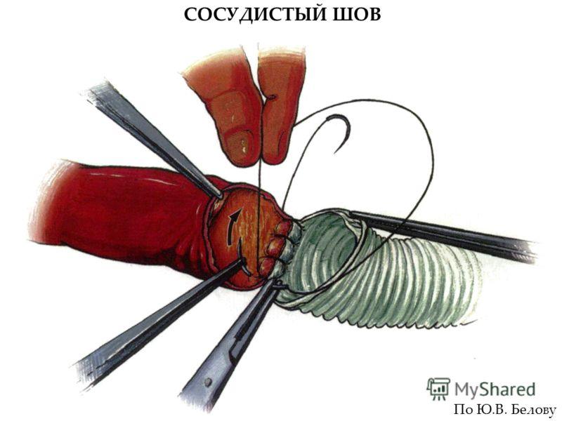СОСУДИСТЫЙ ШОВ По Ю.В. Белову