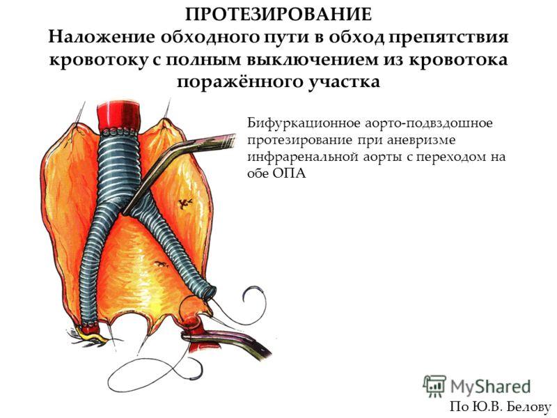 ПРОТЕЗИРОВАНИЕ Наложение обходного пути в обход препятствия кровотоку с полным выключением из кровотока поражённого участка Бифуркационное аорто-подвздошное протезирование при аневризме инфраренальной аорты с переходом на обе ОПА По Ю.В. Белову