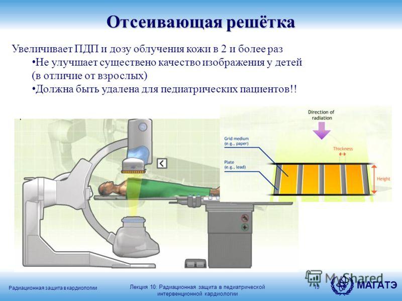 МАГАТЭ Радиационная защита в кардиологии 19 Увеличивает ПДП и дозу облучения кожи в 2 и более раз Не улучшает существено качество изображения у детей (в отличие от взрослых) Должна быть удалена для педиатрических пациентов!! Лекция 10: Радиационная з