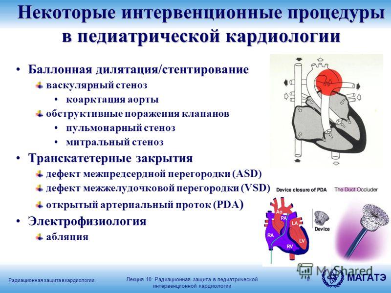 МАГАТЭ Радиационная защита в кардиологии 8 Некоторые интервенционные процедуры в педиатрической кардиологии Баллонная дилятация/стентирование васкулярный стеноз коарктация аорты обструктивные поражения клапанов пульмонарный стеноз митральный стеноз Т