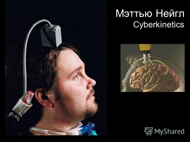 Мэттью Нейгл Cyberkinetics
