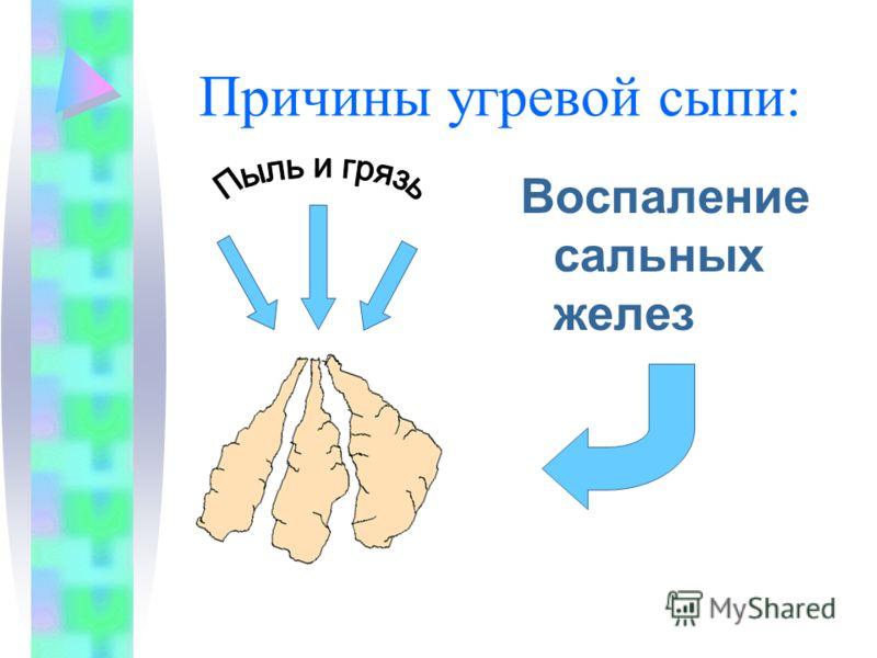 Причины угревой сыпи: Воспаление сальных желез