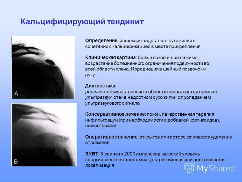 Кальцифицирующий тендинит Определение: инфекция надостного сухожилия в сочетании с кальцификацией в месте прикрепления Клиническая картина: боль в покое и при нажиме, возрастание болезненного ограничения подвижности во всей области плеча. Иррадиация