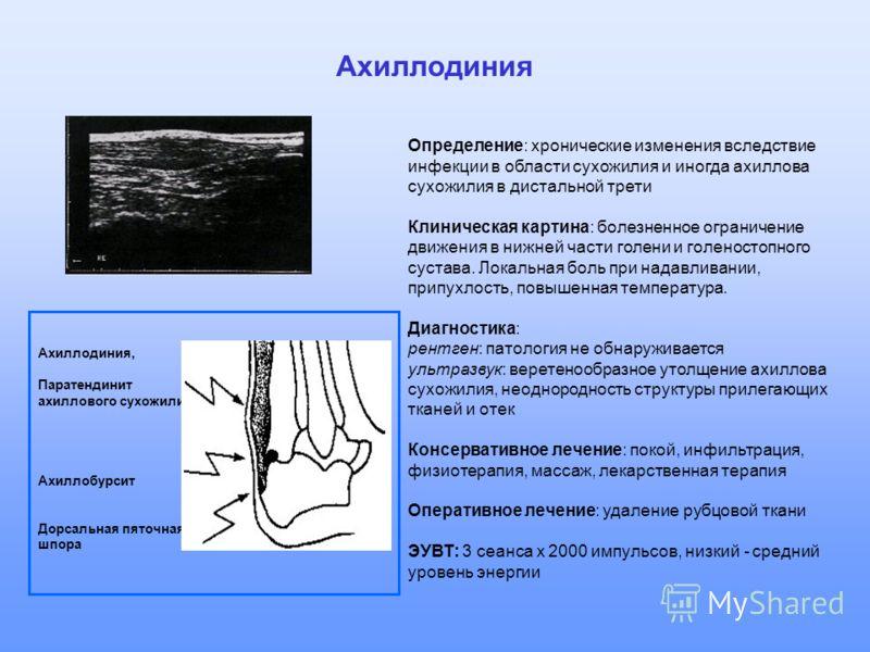 Ахиллодиния Определение: хронические изменения вследствие инфекции в области сухожилия и иногда ахиллова сухожилия в дистальной трети Клиническая картина: болезненное ограничение движения в нижней части голени и голеностопного сустава. Локальная боль