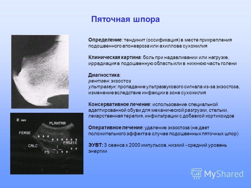 Пяточная шпора Определение: тендинит (оссификация) в месте прикрепления подошвенного апоневроза или ахиллова сухожилия Клиническая картина: боль при надавливании или нагрузке, иррадиация в подошвенную область или в нижнюю часть голени Диагностика: ре