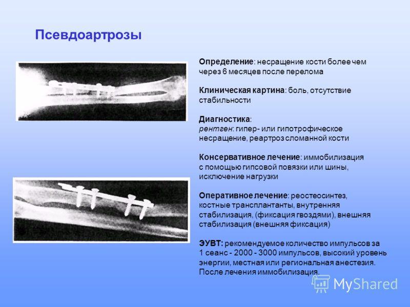 Псевдоартрозы Определение: несращение кости более чем через 6 месяцев после перелома Клиническая картина: боль, отсутствие стабильности Диагностика: рентген: гипер- или гипотрофическое несращение, реартроз сломанной кости Консервативное лечение: иммо