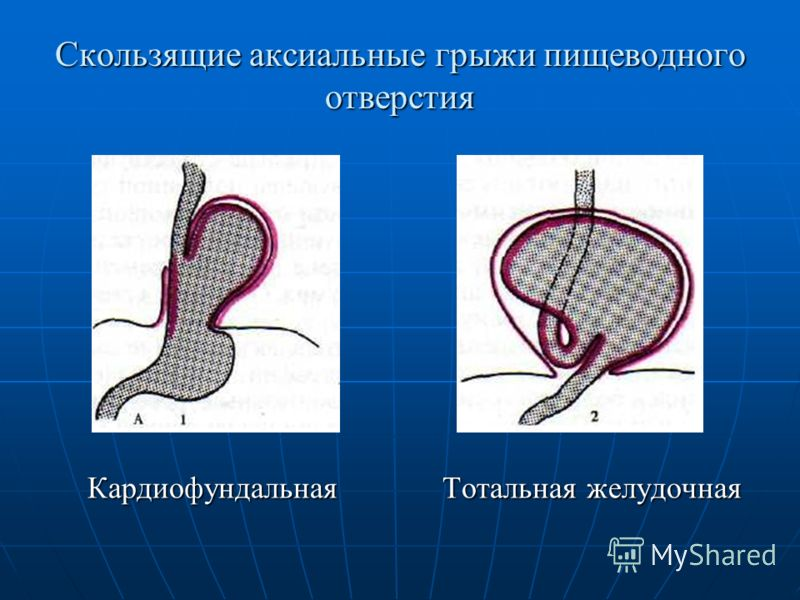 Скользящие аксиальные грыжи пищеводного отверстия Кардиофундальная Тотальная желудочная Кардиофундальная Тотальная желудочная
