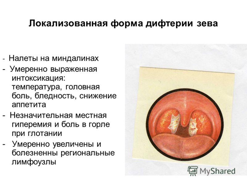 Локализованная форма дифтерии зева - Налеты на миндалинах - Умеренно выраженная интоксикация: температура, головная боль, бледность, снижение аппетита - Незначительная местная гиперемия и боль в горле при глотании - Умеренно увеличены и болезненны ре