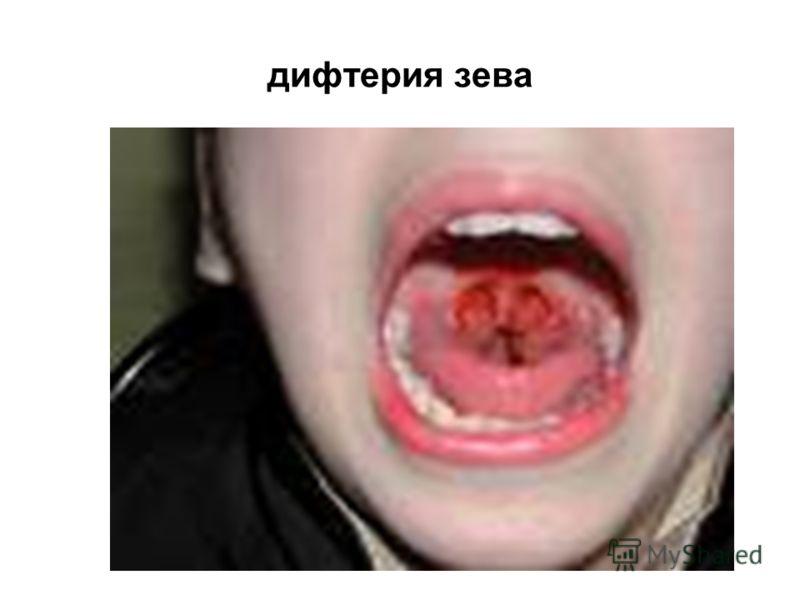 Болит голова першит в горле температуры нет