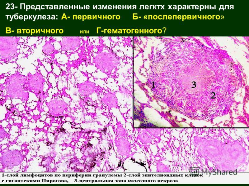23- Представленные изменения легктх характерны для туберкулеза: А- первичного Б- «послепервичного» В- вторичного или Г-гематогенного?