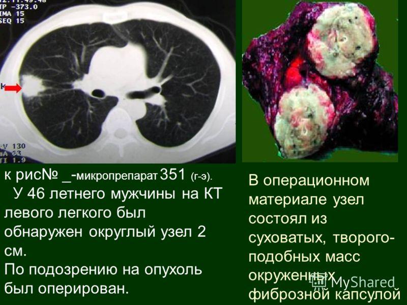 к рис _- микропрепарат 351 (г-э). У 46 летнего мужчины на КТ левого легкого был обнаружен округлый узел 2 см. По подозрению на опухоль был оперирован. В операционном материале узел состоял из суховатых, творого- подобных масс окруженных фиброзной кап