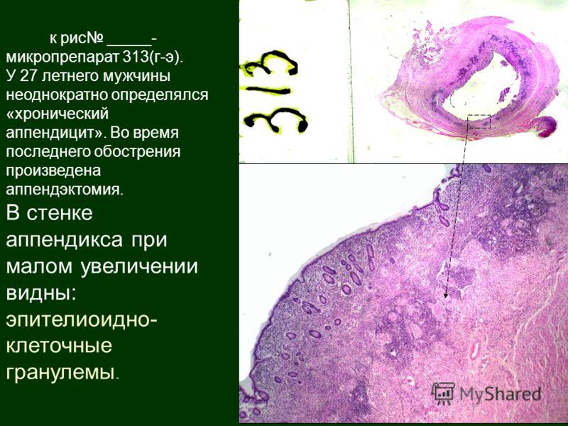 к рис _____- микропрепарат 313(г-э). У 27 летнего мужчины неоднократно определялся «хронический аппендицит». Во время последнего обострения произведена аппендэктомия. В стенке аппендикса при малом увеличении видны: эпителиоидно- клеточные гранулемы.
