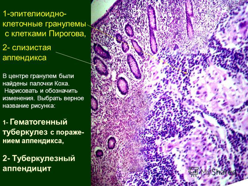 1-эпителиоидно- клеточные гранулемы с клетками Пирогова, 2- слизистая аппендикса В центре гранулем были найдены палочки Коха. Нарисовать и обозначить изменения. Выбрать верное название рисунка: 1- Гематогенный туберкулез с пораже- нием аппендикса, 2-