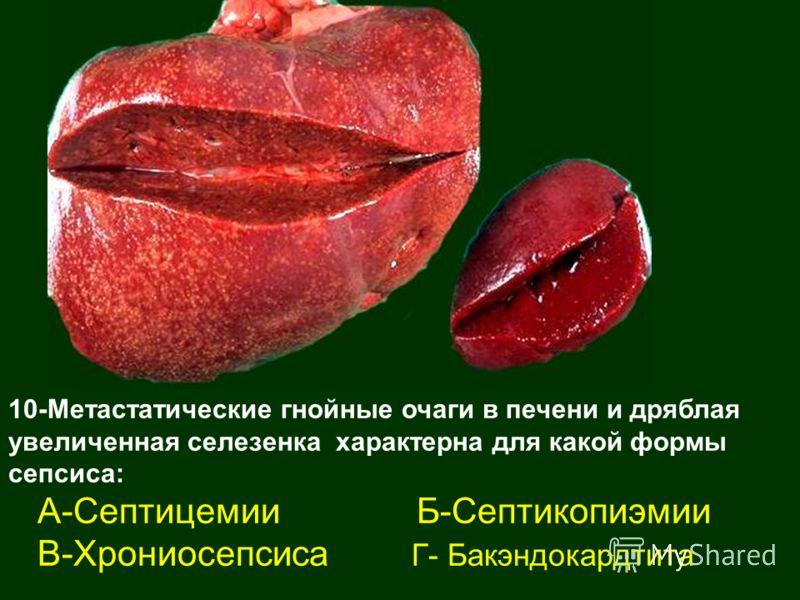 10-Метастатические гнойные очаги в печени и дряблая увеличенная селезенка характерна для какой формы сепсиса: А-Септицемии Б-Септикопиэмии В-Хрониосепсиса Г- Бакэндокардтита
