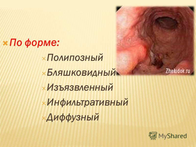 По форме: Полипозный Бляшковидный Изъязвленный Инфильтративный Диффузный