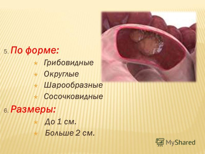 5. По форме: Грибовидные Округлые Шарообразные Сосочковидные 6. Размеры: До 1 см. Больше 2 см.
