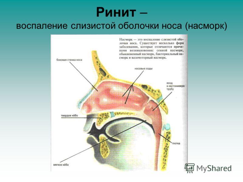 Ринит – воспаление слизистой оболочки носа (насморк)