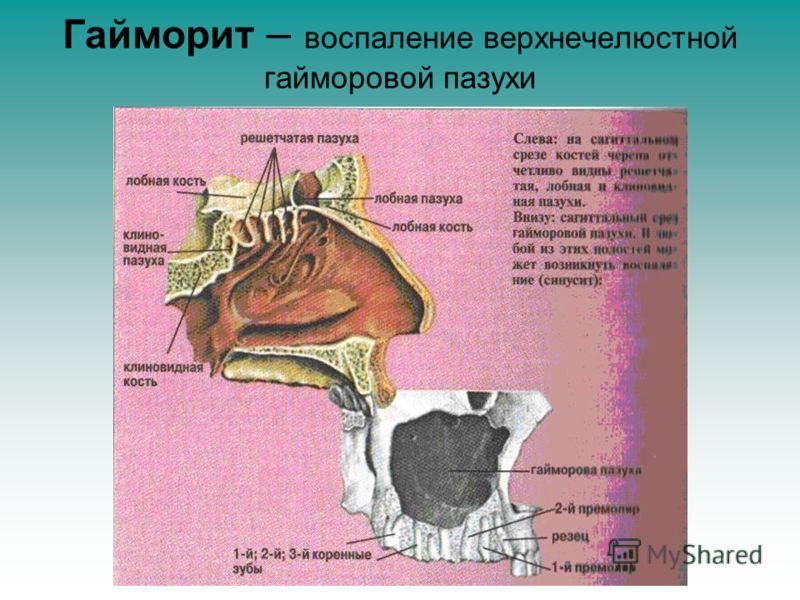 Гайморит – воспаление верхнечелюстной гайморовой пазухи