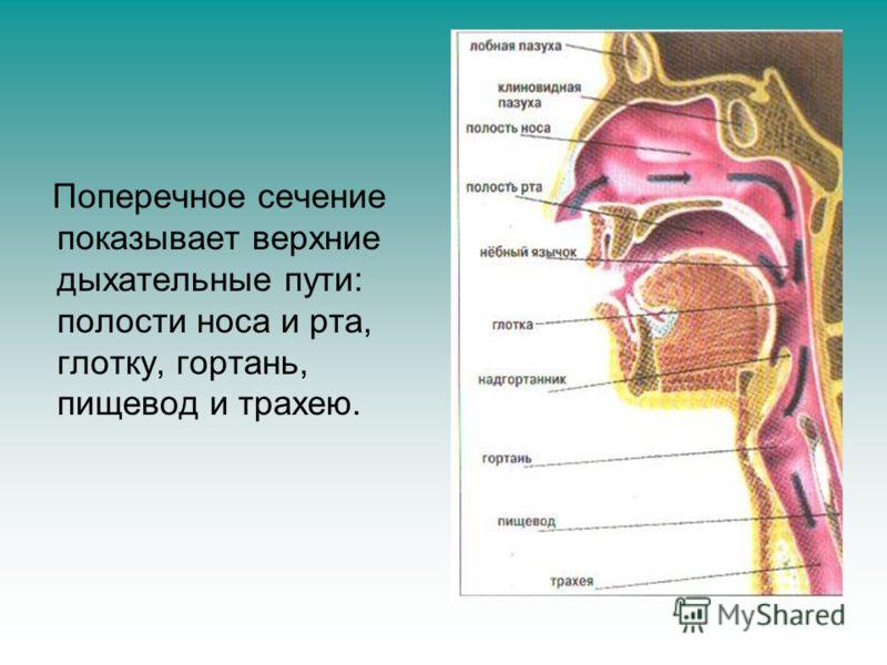 Поперечное сечение показывает верхние дыхательные пути: полости носа и рта, глотку, гортань, пищевод и трахею.