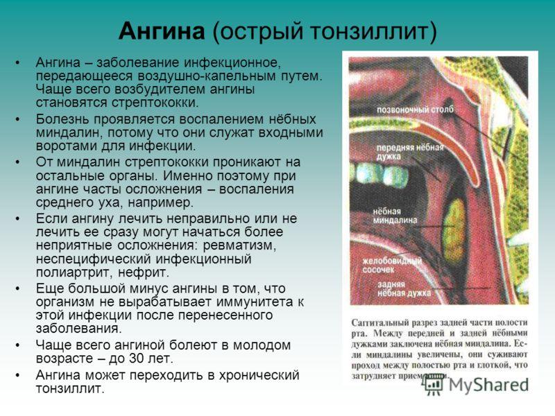 Ангина (острый тонзиллит) Ангина – заболевание инфекционное, передающееся воздушно-капельным путем. Чаще всего возбудителем ангины становятся стрептококки. Болезнь проявляется воспалением нёбных миндалин, потому что они служат входными воротами для и